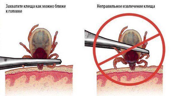 На фото показано, как правильно извлекать клеща