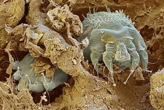 Пылевой клещ легче пыли и с легкостью может проникнуть в дыхательные пути
