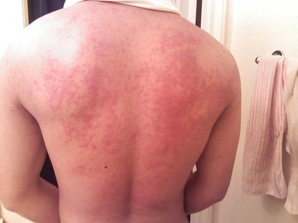 Аллергическая реакция на белок, содержащийся в экскрементах постельного клеща