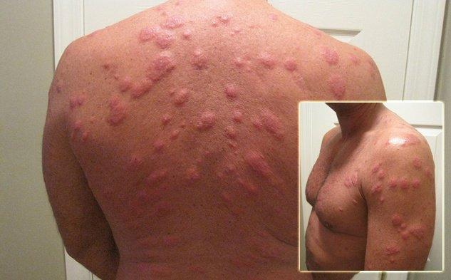 Аллергическая реакция после укусов постельного клопа