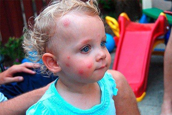 Аллергия на укус клопа у ребенка