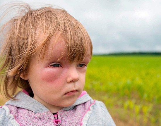Если оса укусила ребенка - немедленно обращайтесь в больницу