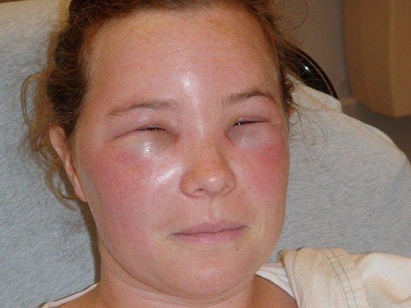 Распухшее лицо после укуса осы в лоб